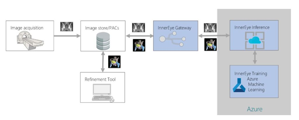 Radiotherapy planning workflow. Image aquisition followed by Image storage/PACs. The images are sent through a refinement tool and then back to image storage. These images are then sent through the InnerEye Gateway and then through InnerEye inference, finally moving through InnerEye training with Azure Machine Learning.