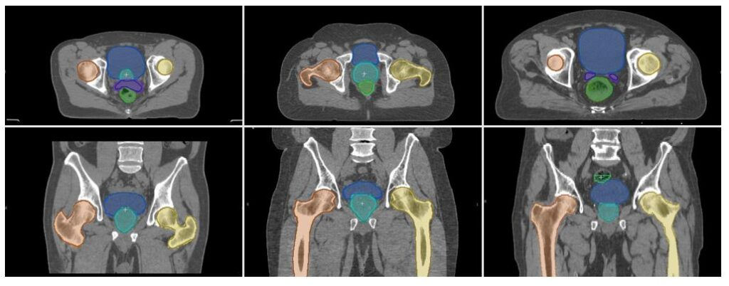 Six example images of head-and-neck and pelvis CT scans (three of each). Darker colored outlines and lighter colored outlines of similar areas in the scans show roughly the same area outlined.