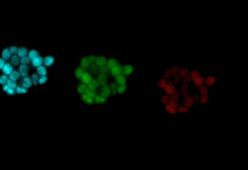 Decision-Making in Stem Cells