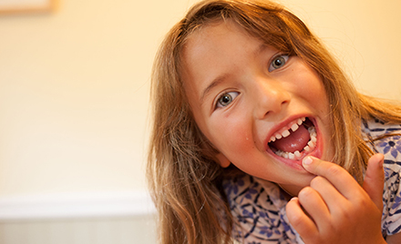 Image of a girl pointing to a missing tooth and smiling.